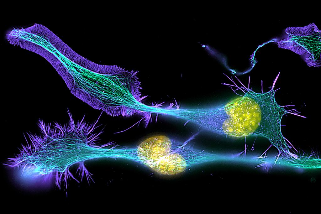 Brain Diaries - Modern Neuroscience in Action